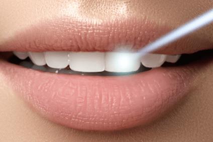 Lichtstrahl auf den Zahn
