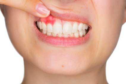 Effektive Parodontits-Behandlung