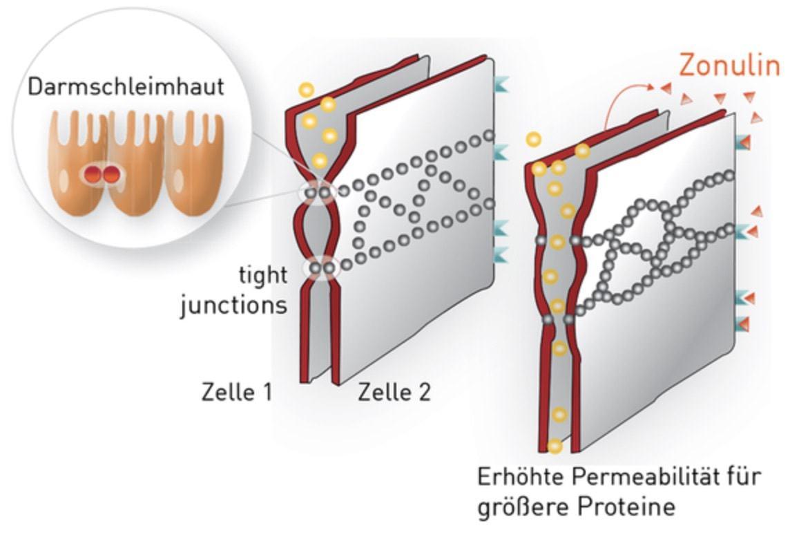 Zonulin und die Erhöhte Permeabilität in der Darmschleimhaut